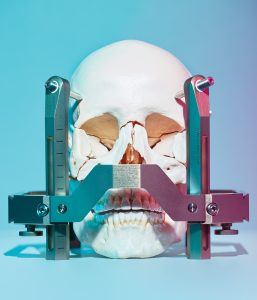 The Gamma Knife targets the human head